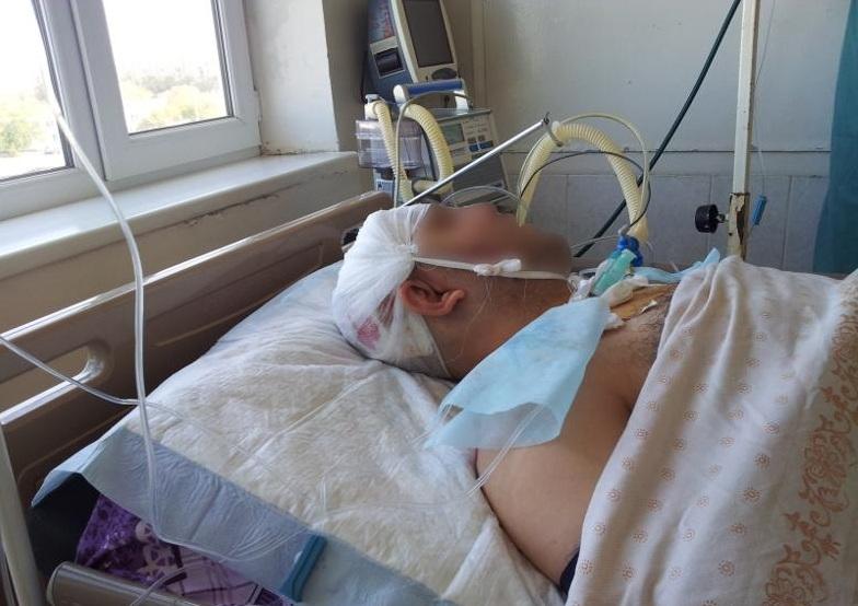 В Вологде полицейские задержали мужчину, который во время свадьбы избил прохожего до полусмерти
