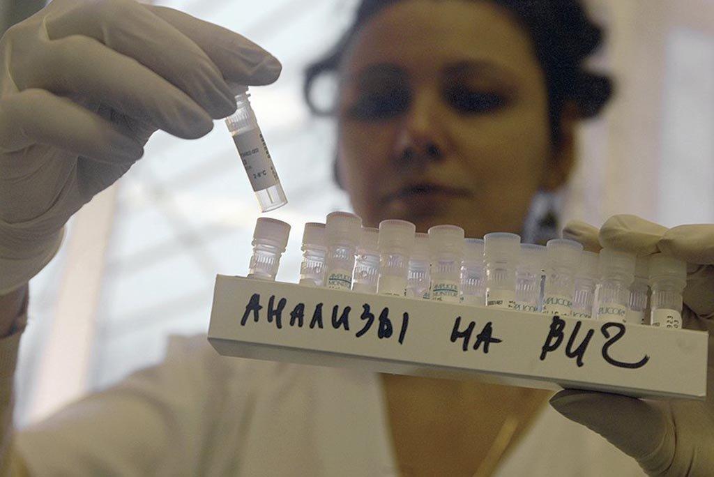 Вологжанин заразил 13-летнюю девочку ВИЧ