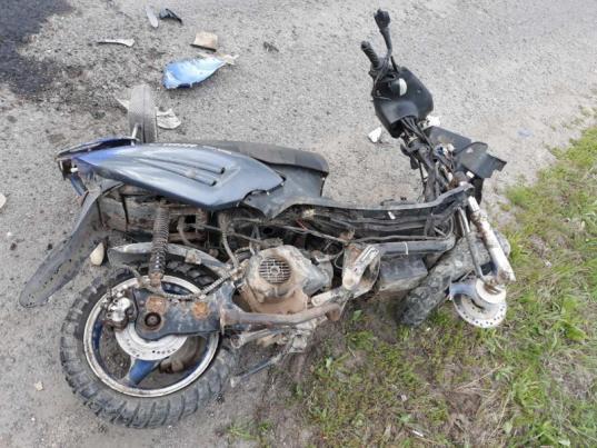 В Сокольском районе пьяный скутерист врезался в прицеп грузовика и попал в больницу