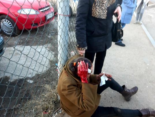 В Череповце подростки до крови избили женщину, проломив ей голову