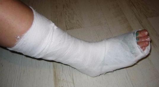 В Череповце женщине, сломавшей ногу, пришлось подниматься к травматологу на пятый этаж