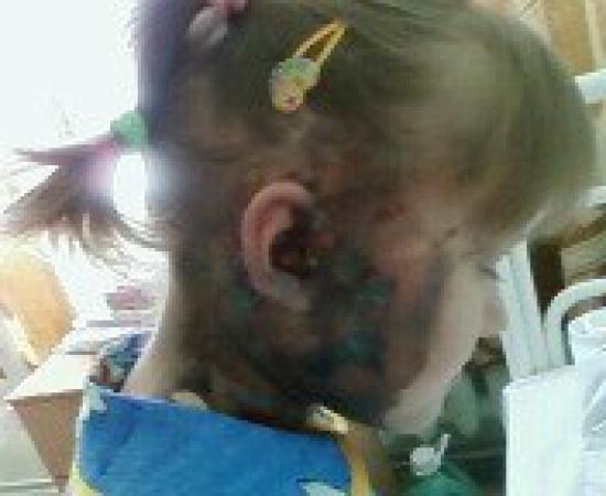 6-летняя девочка получила сильные ожоги