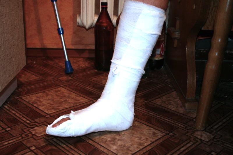 Из-за 5 тысяч рублей вологжанин сломал должнику обе ноги