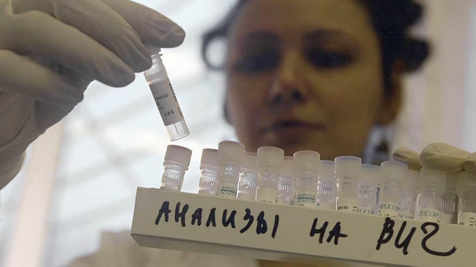 В Вологодской области растет число больных ВИЧ-инфекцией