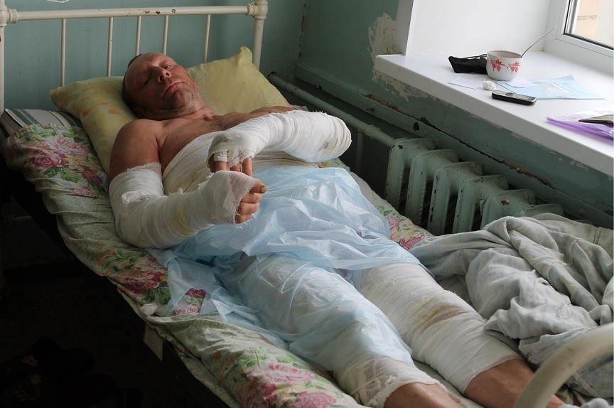 Житель Вологодской области получил тяжелые ожоги, борясь с борщевиком