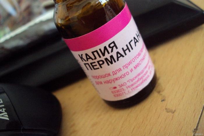 Прокуратура установила, что в одной из аптек Череповца были на 18-30 копеек завышены цены на аспирин и марганцовку