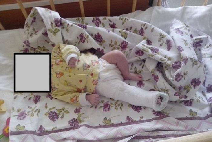 В Вологде проводится доследственная проверка по факту травмирования младенца из Дома ребенка